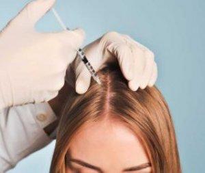 Saç Dökülmesi ve PRP ile Saç Tedavisi