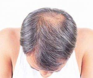 Saç Mezoterapisi İşlemi Nedir